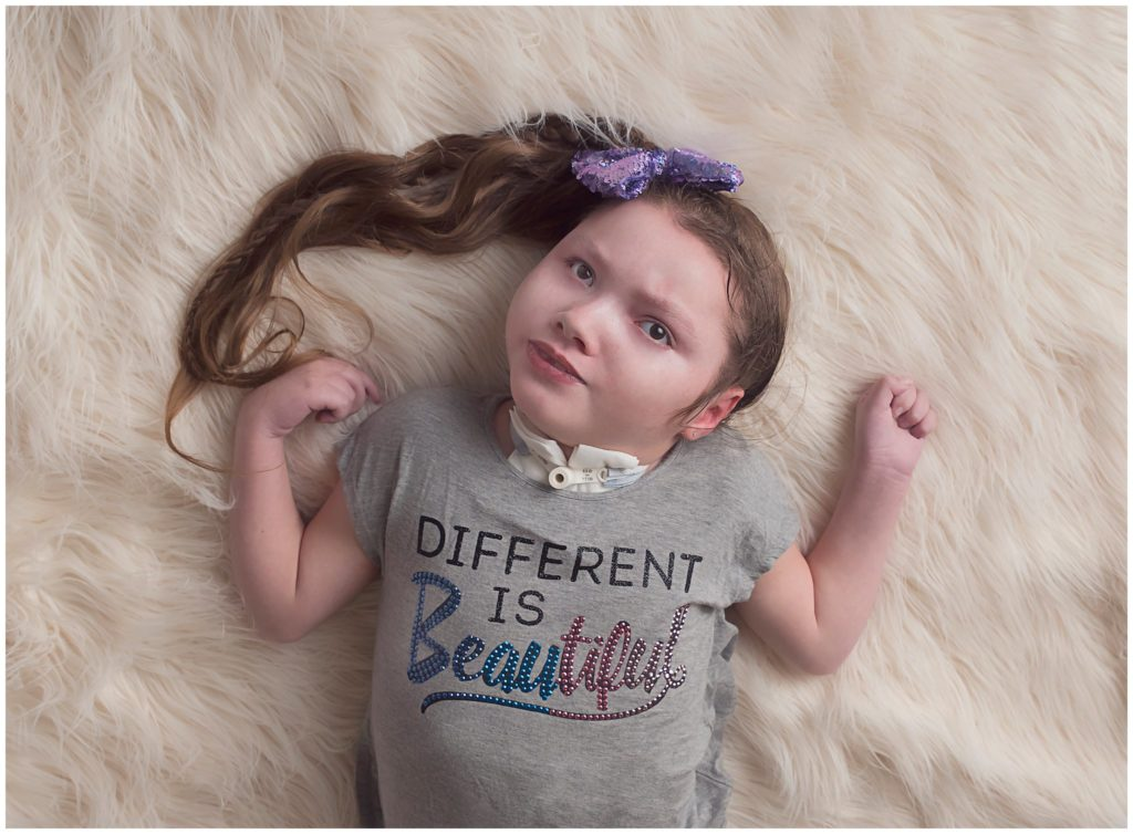 Kathy Rogers Photography_Beautifully Different_Children Photographer in Amherst_Little girl _cerebral palsy