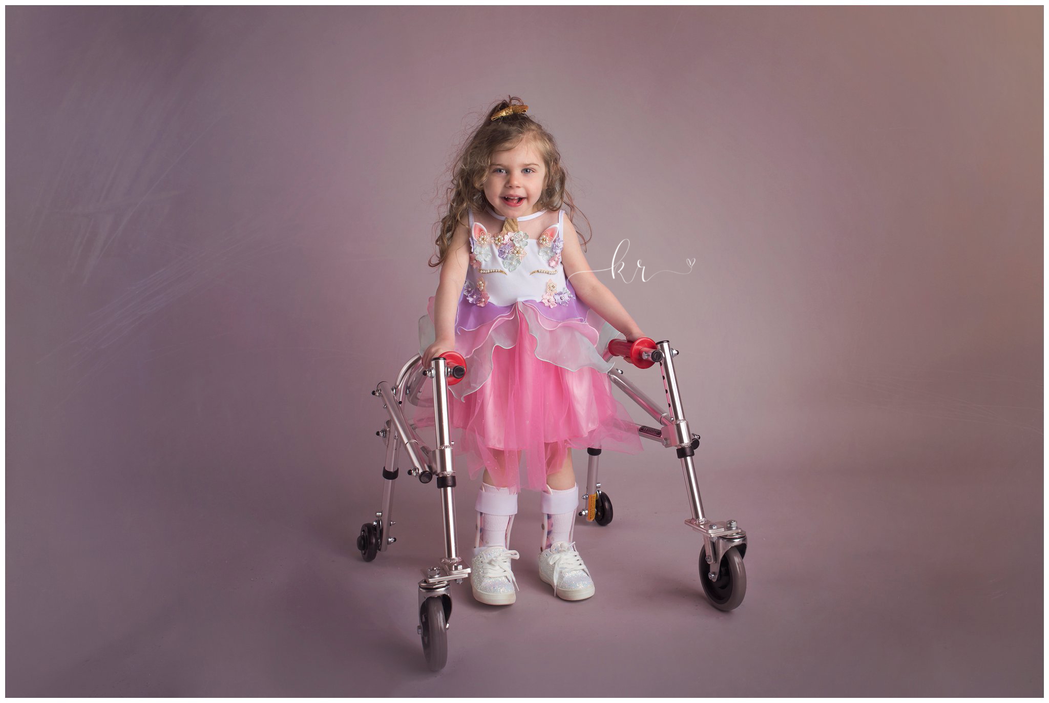 Kathy Rogers Photography_Beautifully Different_Children Photographer in Amherst_Little girl _agenesis of the corpus callosum