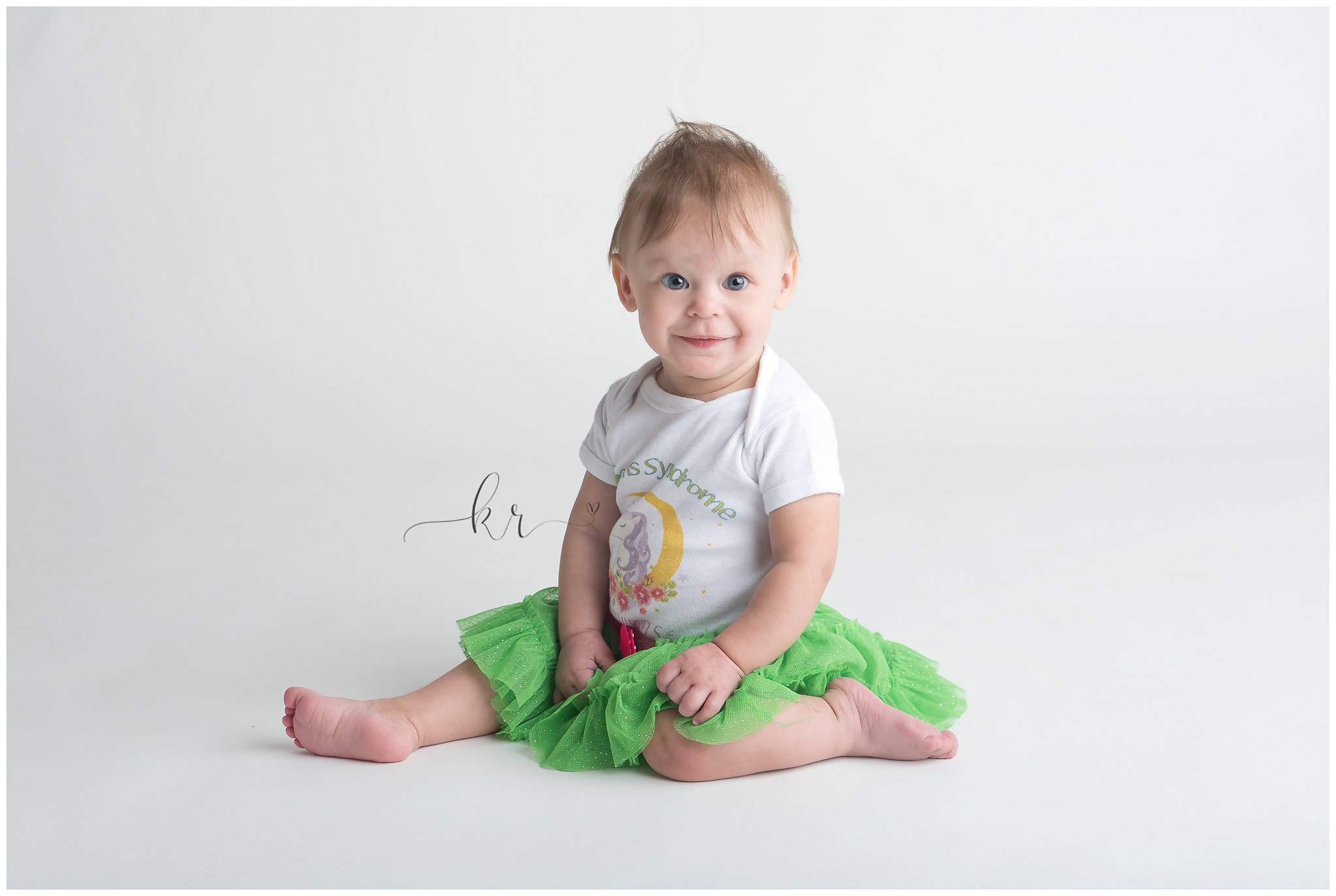 Kathy Rogers Photography_Beautifully Different_Children Photographer in Amherst_Little girl _williams syndrome