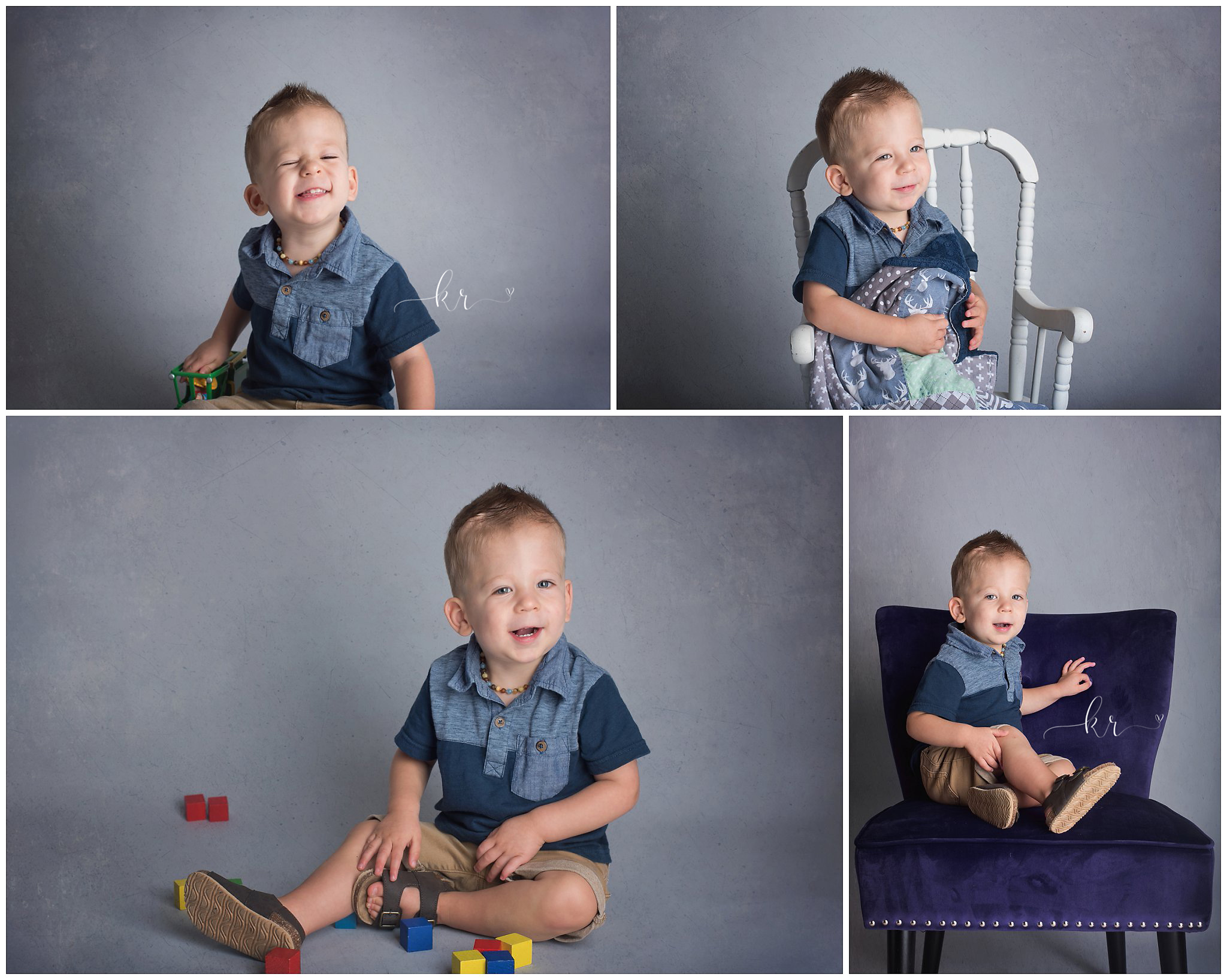 Kathy Rogers Photography_Beautifully Different_Children Photographer in Amherst_Little boy _Hydrocephalus_Agenesis of the Corpus Calosum_Chiari Malformation
