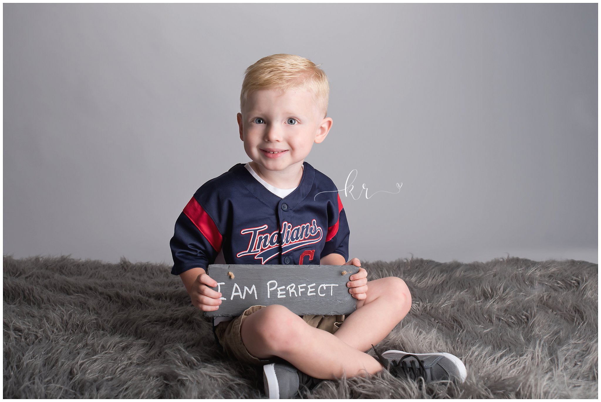 Kathy Rogers Photography_Beautifully Different_Children Photographer in Amherst_Little boy _ocular albinism