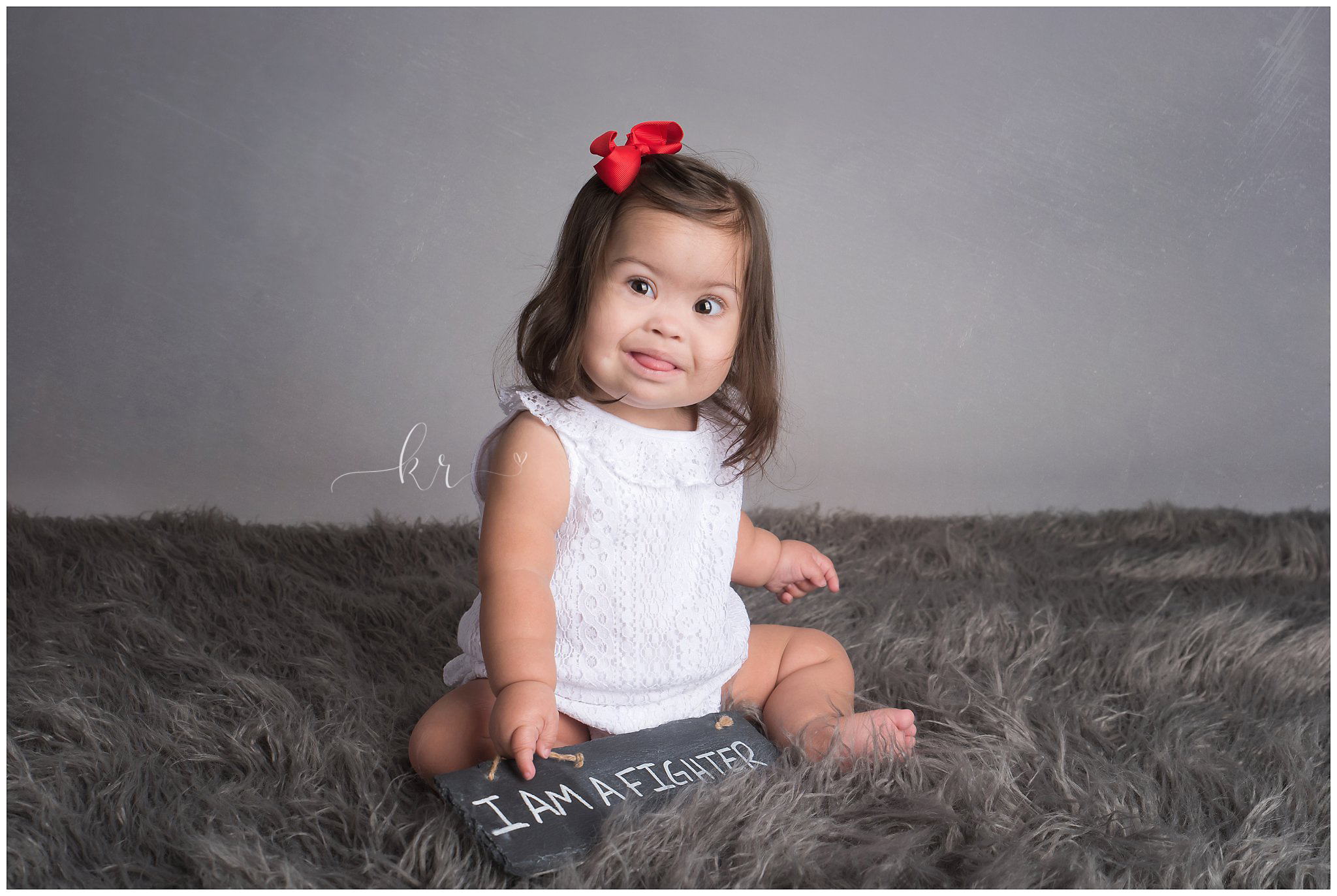 Kathy Rogers Photography_Beautifully Different_Children Photographer in Amherst_Little girl_Down Syndrome_heart surgery_red tutu